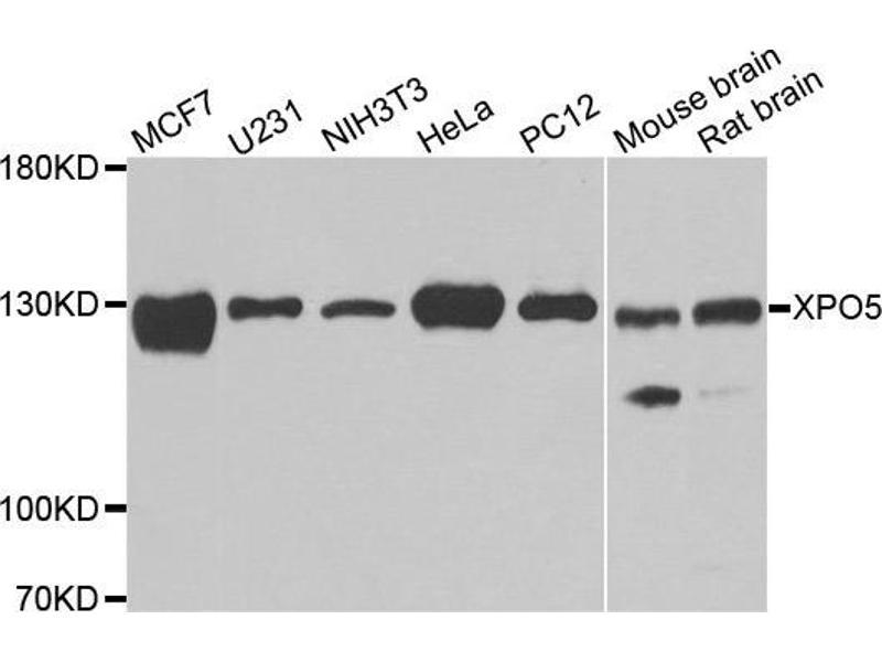 Western Blotting (WB) image for anti-Exportin 5 (XPO5) antibody (ABIN2560799)