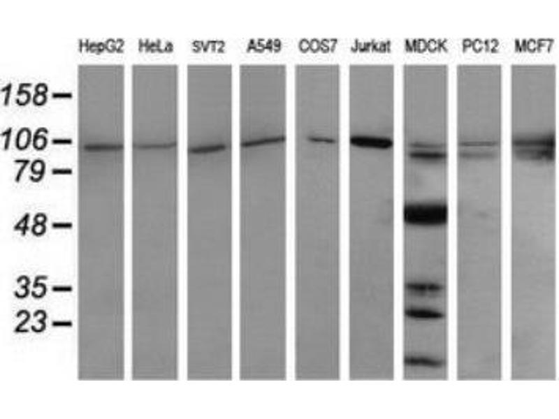 Western Blotting (WB) image for anti-Phosphoinositide-3-Kinase, Regulatory Subunit 5 (PIK3R5) antibody (ABIN4345601)