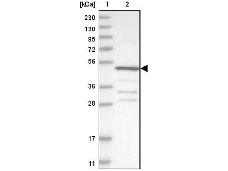 Western Blotting (WB) image for anti-Sterol Carrier Protein 2 (SCP2) antibody (ABIN4352277)