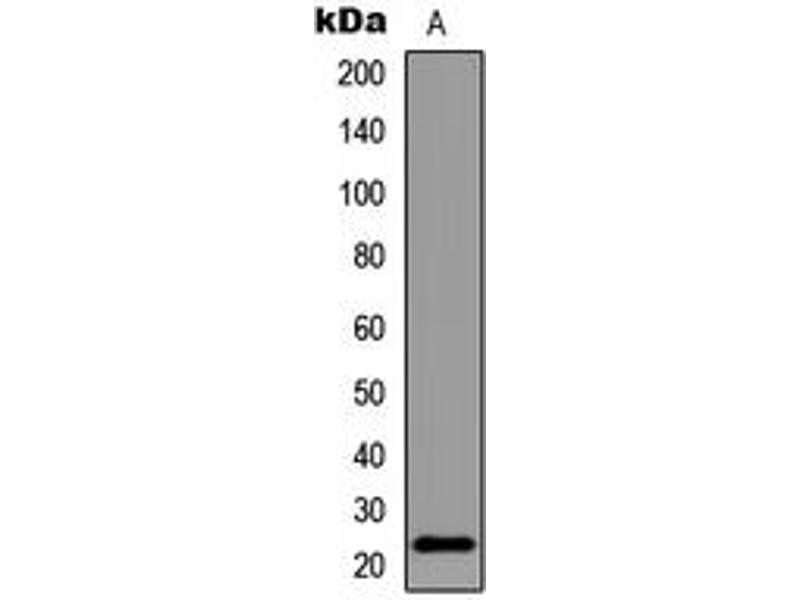 Western Blotting (WB) image for anti-BCL2-Associated Agonist of Cell Death (BAD) (C-Term), (pSer155) antibody (ABIN2704517)