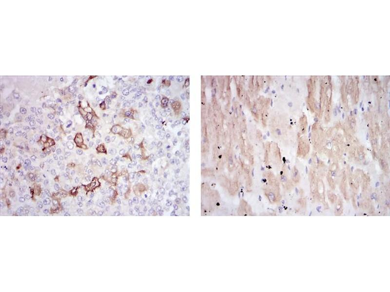 Immunohistochemistry (IHC) image for anti-Heat Shock 27kDa Protein 1 (HSPB1) antibody (ABIN1107614)