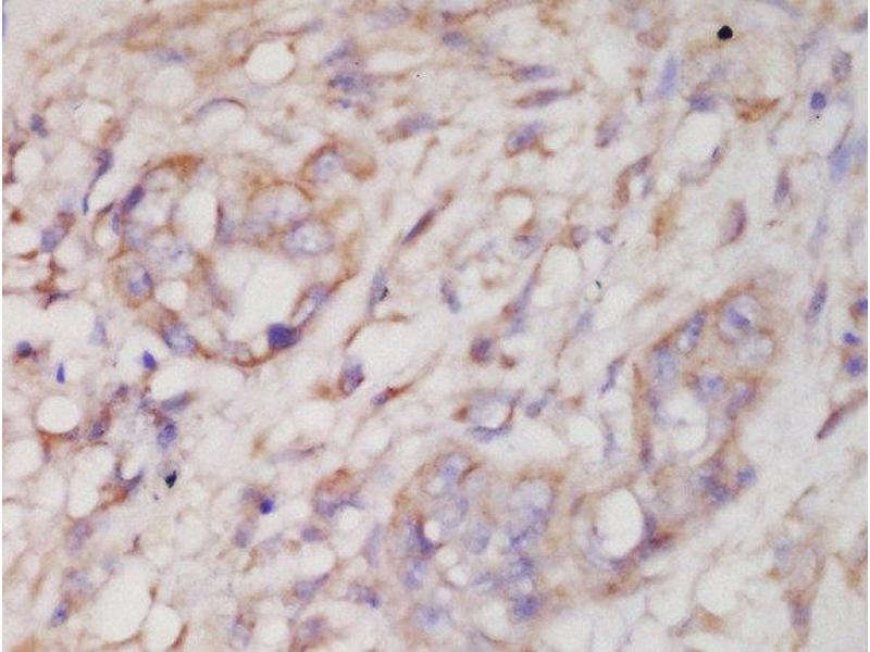 Immunohistochemistry (Paraffin-embedded Sections) (IHC (p)) image for anti-Mitogen-Activated Protein Kinase 12 (MAPK12) (pThr183), (pTyr185) antibody (ABIN1387757)