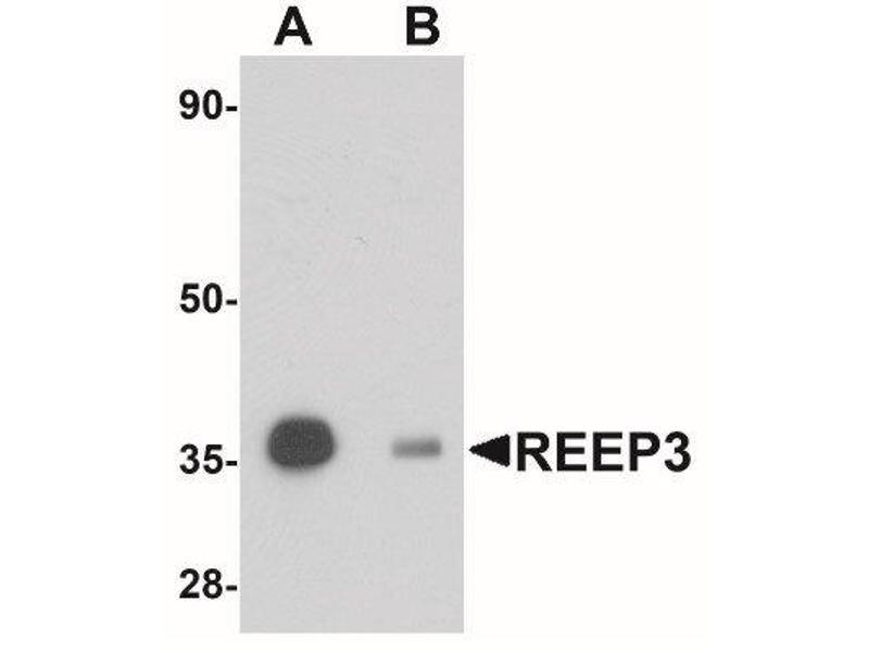 Western Blotting (WB) image for anti-Receptor Accessory Protein 3 (REEP3) (C-Term) antibody (ABIN4349811)