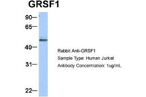 Image no. 7 for anti-G-Rich RNA Sequence Binding Factor 1 (GRSF1) (Middle Region) antibody (ABIN2778788)