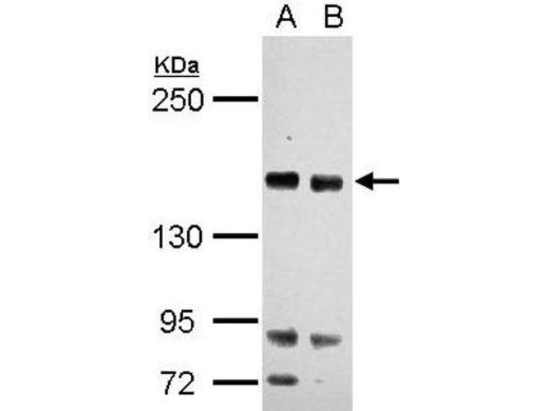 Western Blotting (WB) image for anti-RASAL2 抗体 (RAS Protein Activator Like 2) (C-Term) (ABIN4349404)