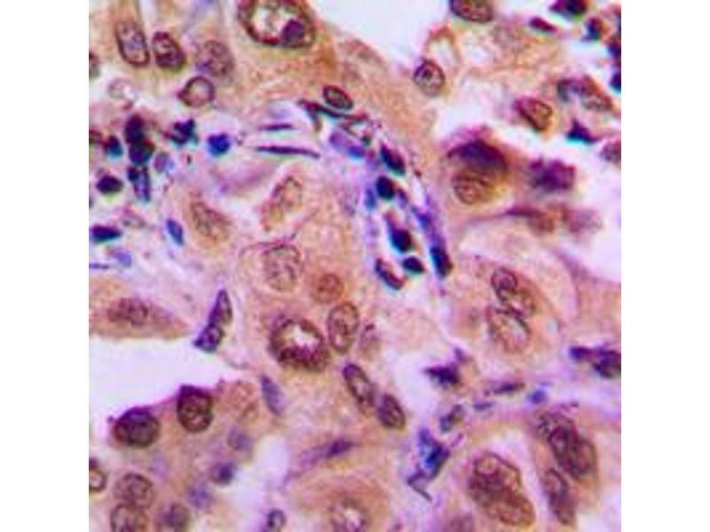 Immunohistochemistry (IHC) image for anti-Mitogen-Activated Protein Kinase Kinase 1 (MAP2K1) (Center) antibody (ABIN2706546)