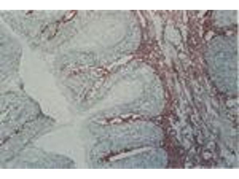 image for anti-Tenascin C (TNC) antibody (ABIN108414)