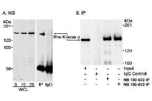 Western Blotting (WB) image for anti-ROCK2 antibody (rho-Associated, Coiled-Coil Containing Protein Kinase 2) (C-Term) (ABIN152025)