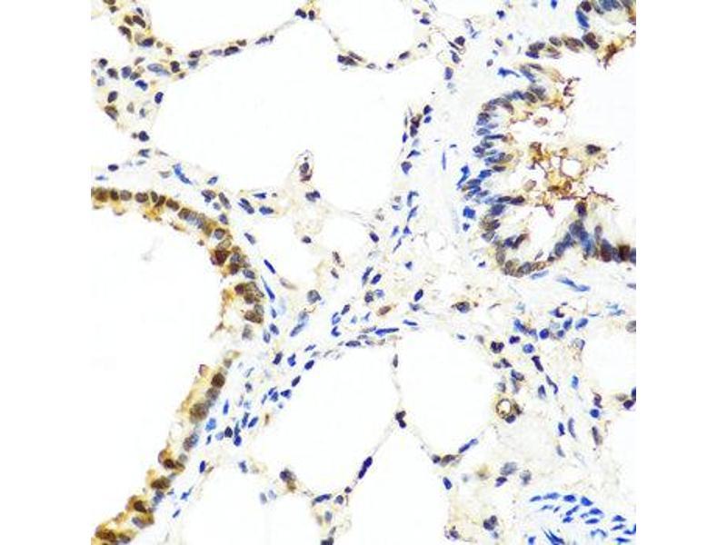 Immunohistochemistry (IHC) image for anti-Interleukin 13 (IL13) antibody (ABIN1873190)