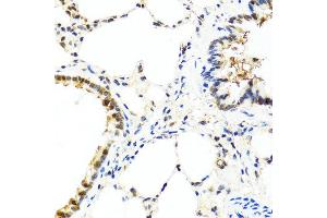 Immunohistochemistry (IHC) image for anti-Interleukin 13 (IL13) antibody (ABIN1873190)