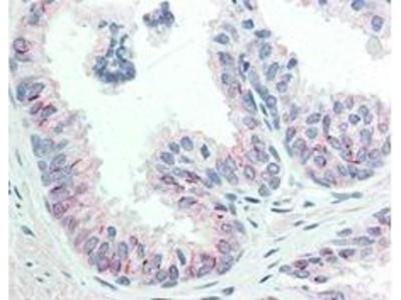 Immunohistochemistry (Paraffin-embedded Sections) (IHC (p)) image for anti-V-Akt Murine Thymoma Viral Oncogene Homolog 1 (AKT1) (pSer473) antibody (ABIN4278999)