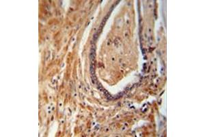 Image no. 1 for anti-NADH Dehydrogenase (Ubiquinone) 1 alpha Subcomplex, Assembly Factor 1 (NDUFAF1) (AA 250-280), (C-Term) antibody (ABIN953630)
