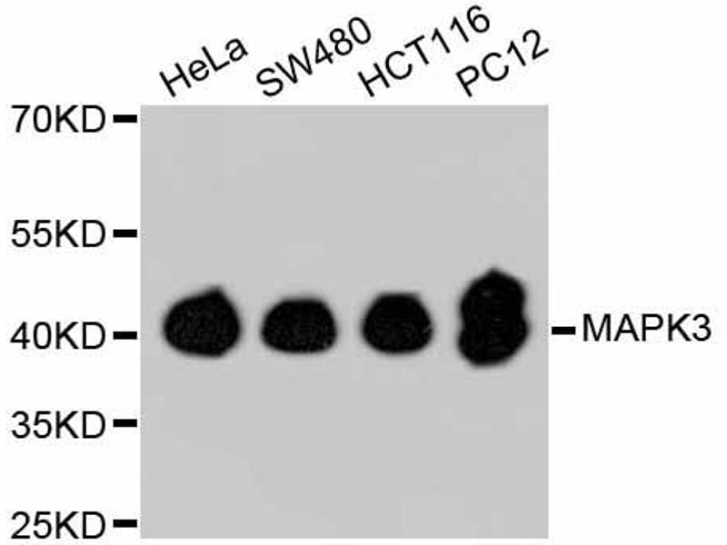 Western Blotting (WB) image for anti-Mitogen-Activated Protein Kinase 3 (MAPK3) antibody (ABIN5997046)