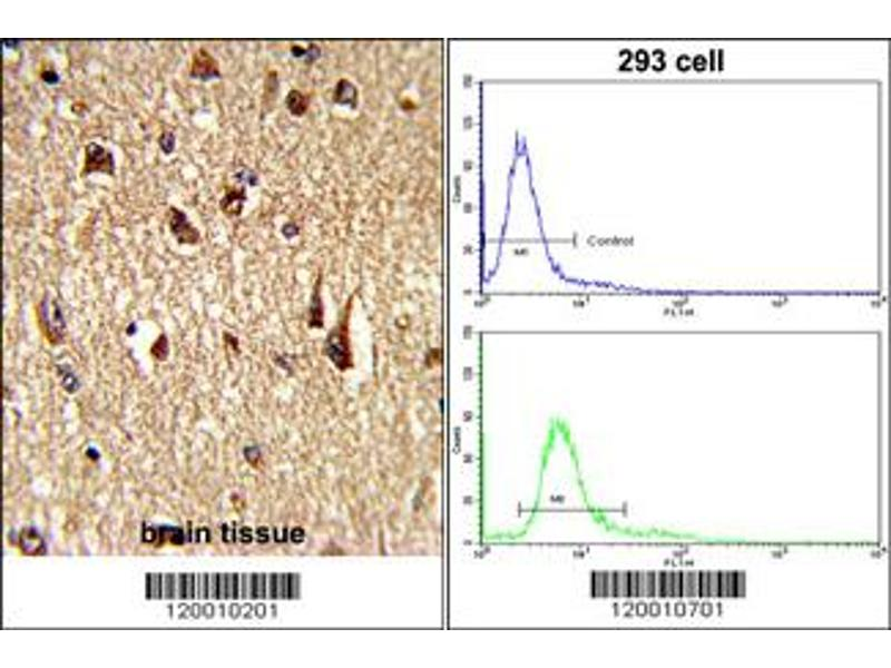 Immunohistochemistry (IHC) image for anti-FOXO1 antibody (Forkhead Box O1) (ABIN2437028)