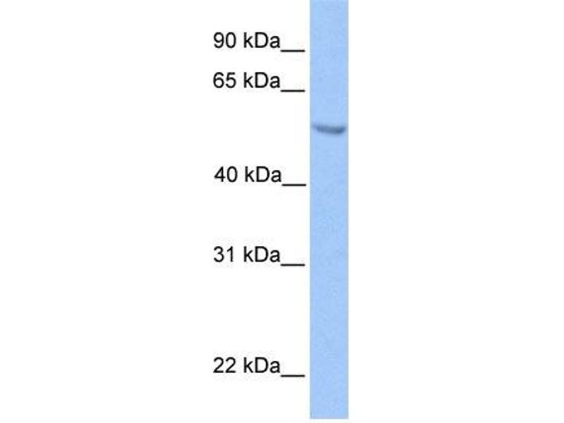 Western Blotting (WB) image for anti-Ets Variant 5 (ETV5) (N-Term) antibody (ABIN2780594)