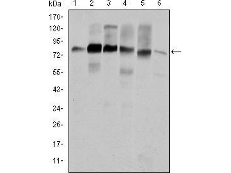 Western Blotting (WB) image for anti-Cortactin (CTTN) antibody (ABIN969073)