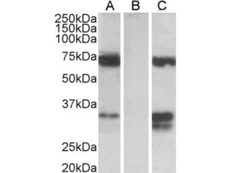 Western Blotting (WB) image for anti-FOXC2 antibody (Forkhead Box C2 (MFH-1, Mesenchyme Forkhead 1)) (C-Term) (ABIN249942)