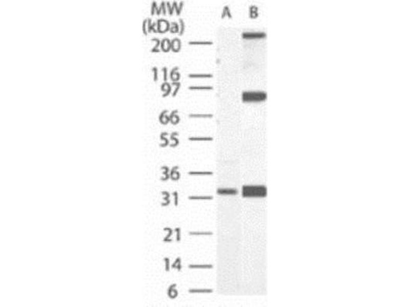 Western Blotting (WB) image for anti-Caspase 3, Apoptosis-Related Cysteine Peptidase (CASP3) antibody (ABIN252651)