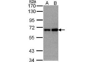 Image no. 1 for anti-F-Box and WD Repeat Domain Containing 11 (FBXW11) (Center) antibody (ABIN2854429)