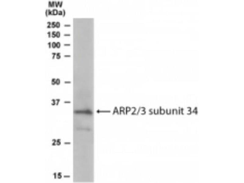 Western Blotting (WB) image for anti-ARPC2 antibody (Actin Related Protein 2/3 Complex, Subunit 2, 34kDa) (C-Term) (ABIN249530)