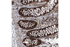 Image no. 1 for anti-Zinc Finger CCCH-Type Containing 15 (ZC3H15) antibody (ABIN5591169)