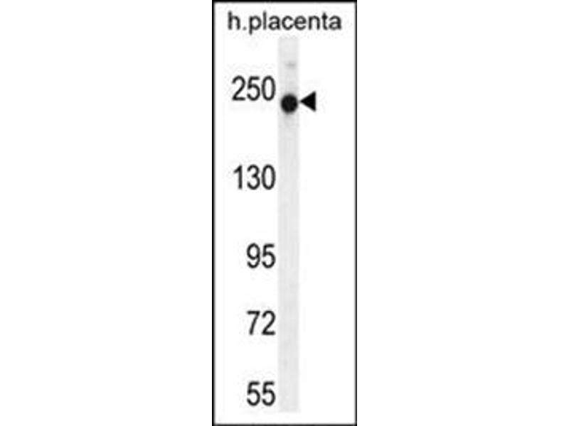 Image no. 2 for anti-RUN and SH3 Domain Containing 2 (RUSC2) (AA 315-344), (N-Term) antibody (ABIN954645)