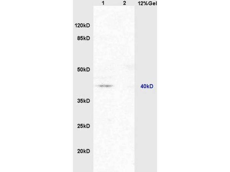SDS-PAGE (SDS) image for anti-Nuclear Receptor Subfamily 1, Group I, Member 2 (NR1I2) (AA 102-113) antibody (ABIN738816)