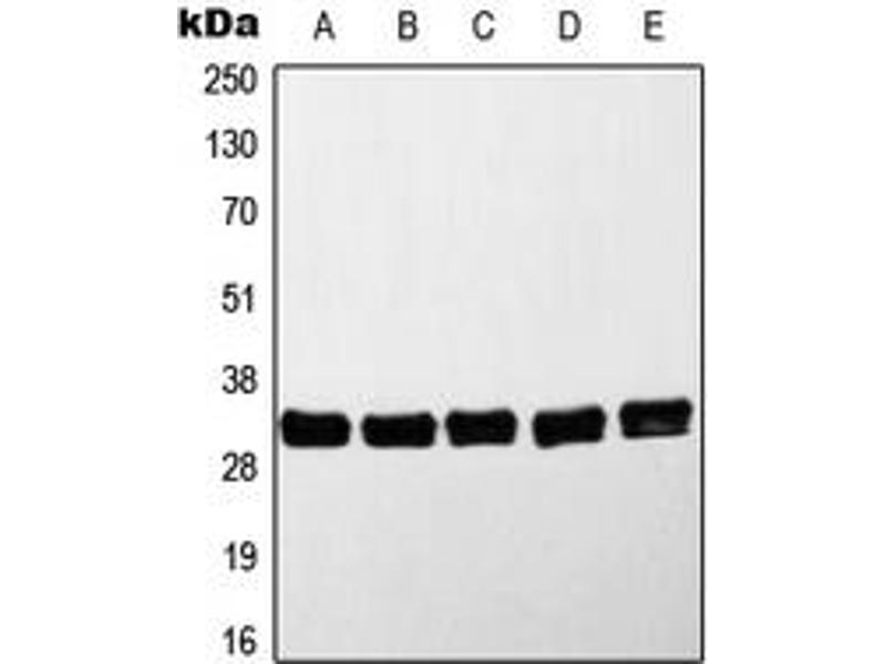 Western Blotting (WB) image for anti-MYD88 antibody (Myeloid Differentiation Primary Response Gene (88)) (Center) (ABIN2706622)