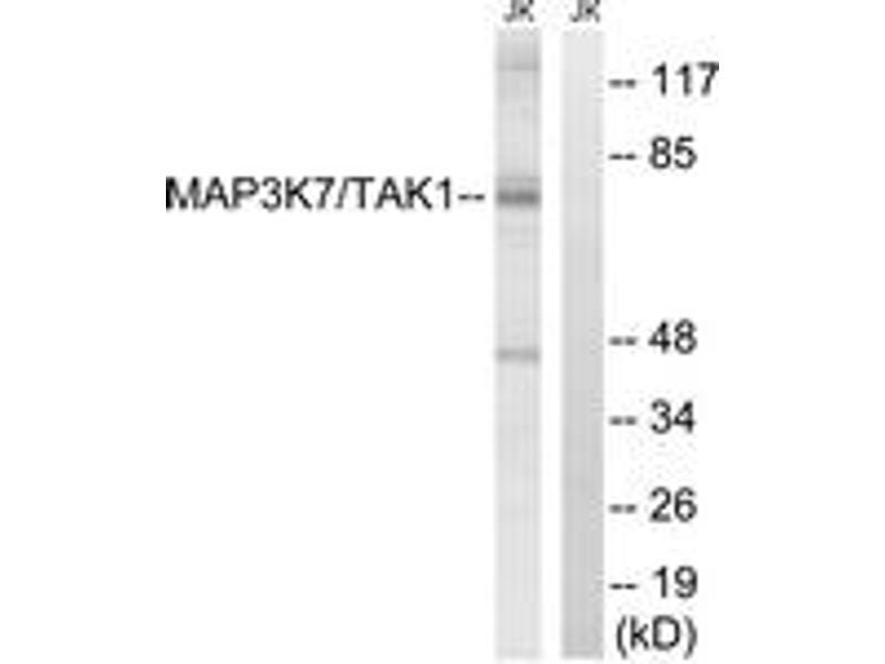Western Blotting (WB) image for anti-Mitogen-Activated Protein Kinase Kinase Kinase 7 (MAP3K7) (AA 161-210) antibody (ABIN1533087)