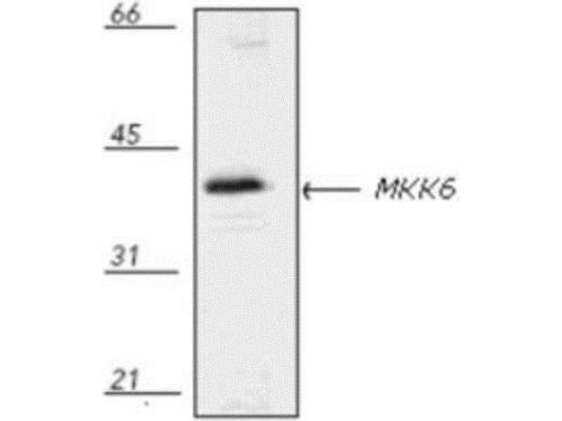 Western Blotting (WB) image for anti-MAP2K6 antibody (Mitogen-Activated Protein Kinase Kinase 6) (ABIN446647)