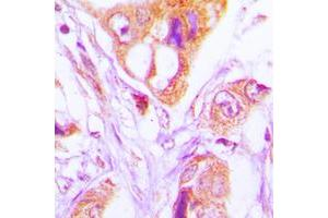 Immunohistochemistry (IHC) image for anti-Fas (TNFRSF6)-Associated Via Death Domain (FADD) (Center) antibody (ABIN2706139)