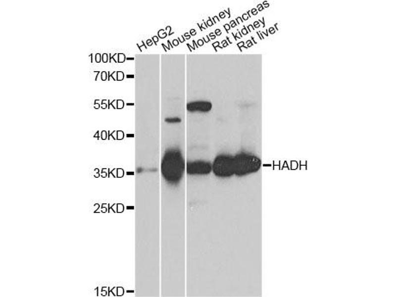 Image no. 1 for anti-Hydroxyacyl-CoA Dehydrogenase (HADH) antibody (ABIN6567018)