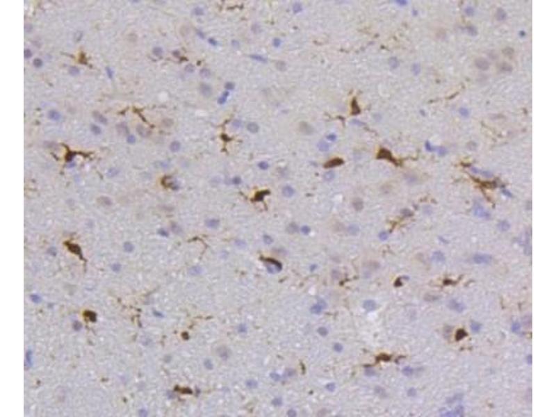 Immunohistochemistry (Paraffin-embedded Sections) (IHC (p)) image for anti-Protein-tyrosine Phosphatase 1C (PTPN6) (C-Term) antibody (ABIN5947559)