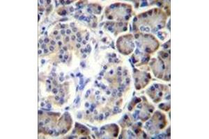 Image no. 2 for anti-Small ArfGAP2 (SMAP2) (AA 110-140), (Middle Region) antibody (ABIN954843)