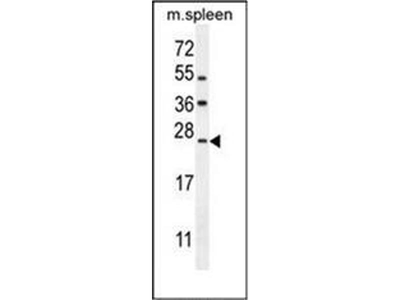 Western Blotting (WB) image for anti-LIM Domain Only 4 (LMO4) (AA 107-135), (Middle Region) antibody (ABIN953196)
