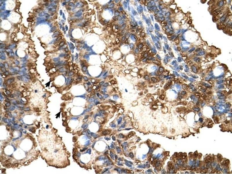 Immunohistochemistry (IHC) image for anti-Phosphoglycerate Kinase 1 (PGK1) (C-Term) antibody (ABIN629772)