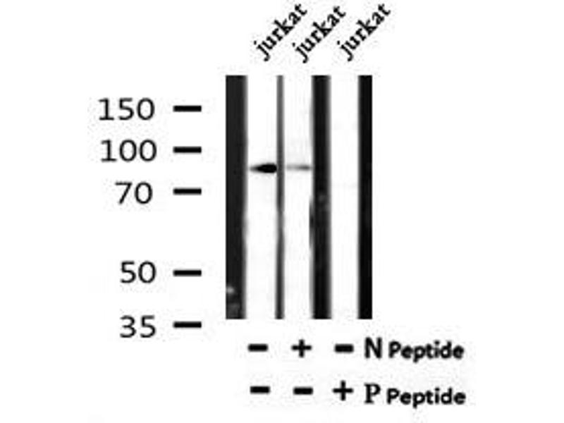 Image no. 2 for anti-Neurotrophic Tyrosine Kinase, Receptor, Type 1 (NTRK1) (pTyr496) antibody (ABIN6269781)