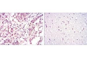 Immunohistochemistry (IHC) image for anti-Activating Transcription Factor 2 (ATF2) antibody (ABIN4880202)