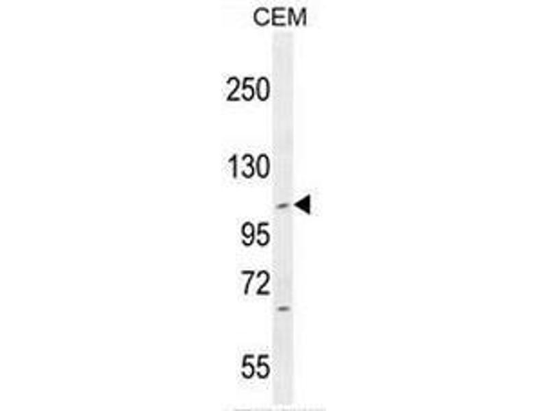 Western Blotting (WB) image for anti-Intraflagellar Transport 88 Homolog (Chlamydomonas) (IFT88) (AA 798-827), (C-Term) antibody (ABIN952829)