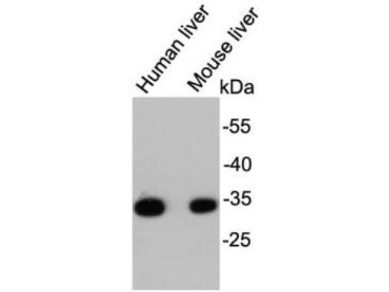 Western Blotting (WB) image for anti-Hydroxyacyl-CoA Dehydrogenase (HADH) (C-Term) antibody (ABIN5951265)