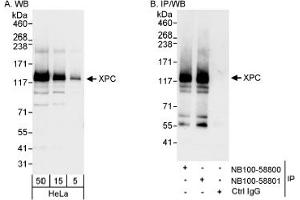 Western Blotting (WB) image for anti-XPC antibody (Xeroderma Pigmentosum, Complementation Group C) (AA 890-940) (ABIN188792)