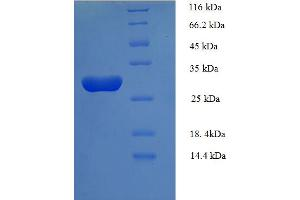 Image no. 1 for L-Ascorbate Peroxidase 2 (APX2) (AA 4-250), (partial) protein (His tag) (ABIN4973920)