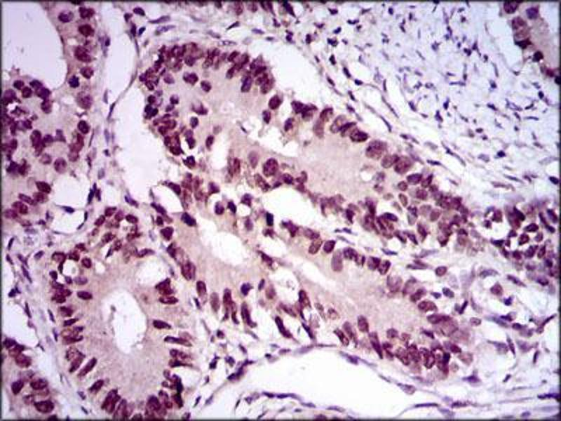 Immunohistochemistry (IHC) image for anti-E2F1 antibody (E2F Transcription Factor 1) (AA 69-223) (ABIN969516)