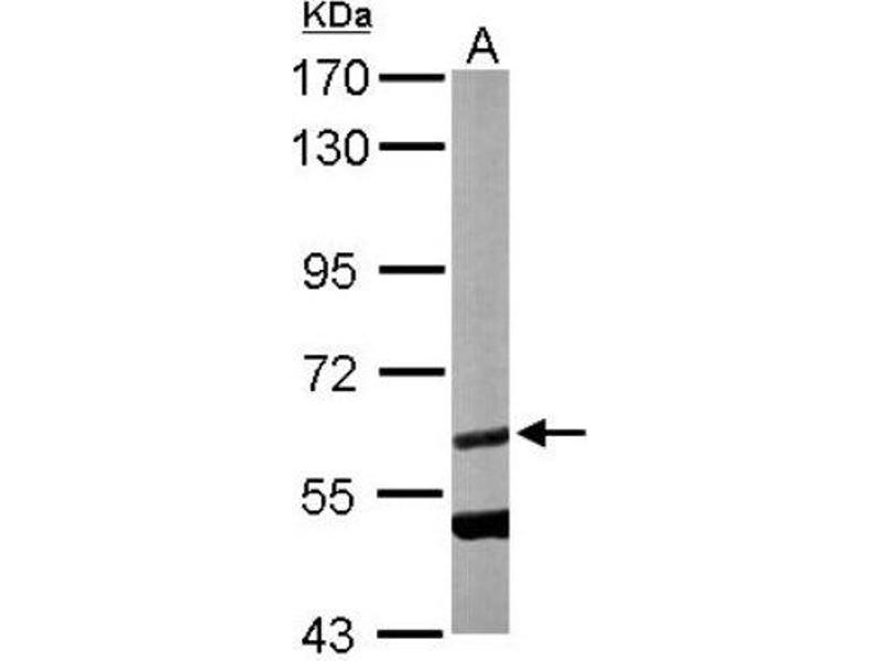 Western Blotting (WB) image for anti-Calcium/calmodulin-Dependent Protein Kinase (CaM Kinase) II beta (CAMK2B) (Center) antibody (ABIN4287585)