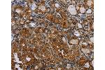 Immunohistochemistry (IHC) image for anti-Colony Stimulating Factor 2 Receptor, Alpha, Low-Affinity (Granulocyte-Macrophage) (CSF2RA) antibody (ABIN2431459)