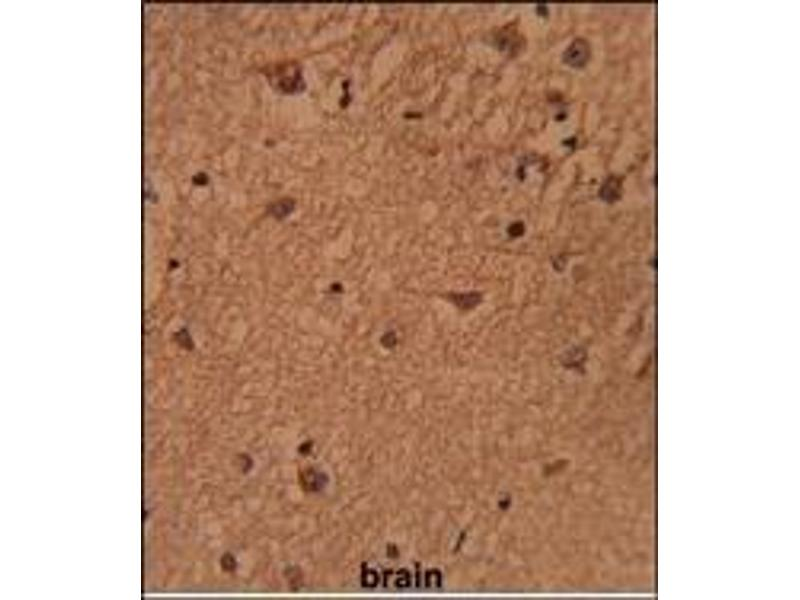 Immunohistochemistry (Paraffin-embedded Sections) (IHC (p)) image for anti-BRISC and BRCA1 A Complex Member 1 (BABAM1) (Middle Region) antibody (ABIN453692)