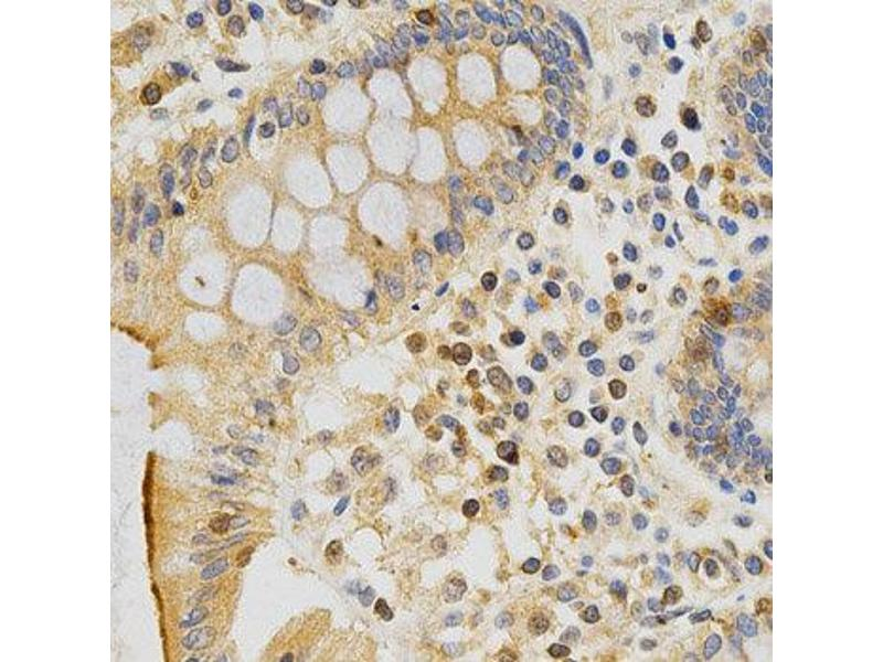 Immunohistochemistry (IHC) image for anti-Protein Kinase C, epsilon (PRKCE) antibody (ABIN1874300)