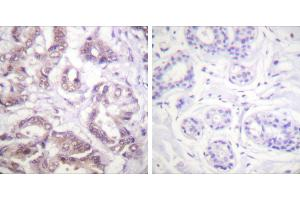Immunohistochemistry (IHC) image for anti-BIRC5 antibody (Baculoviral IAP Repeat-Containing 5) (ABIN2163021)