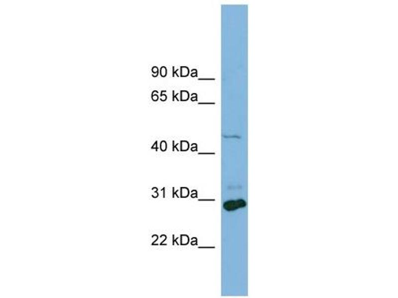 Western Blotting (WB) image for anti-Solute Carrier Family 16, Member 1 (Monocarboxylic Acid Transporter 1) (SLC16A1) (Middle Region) antibody (ABIN2781586)