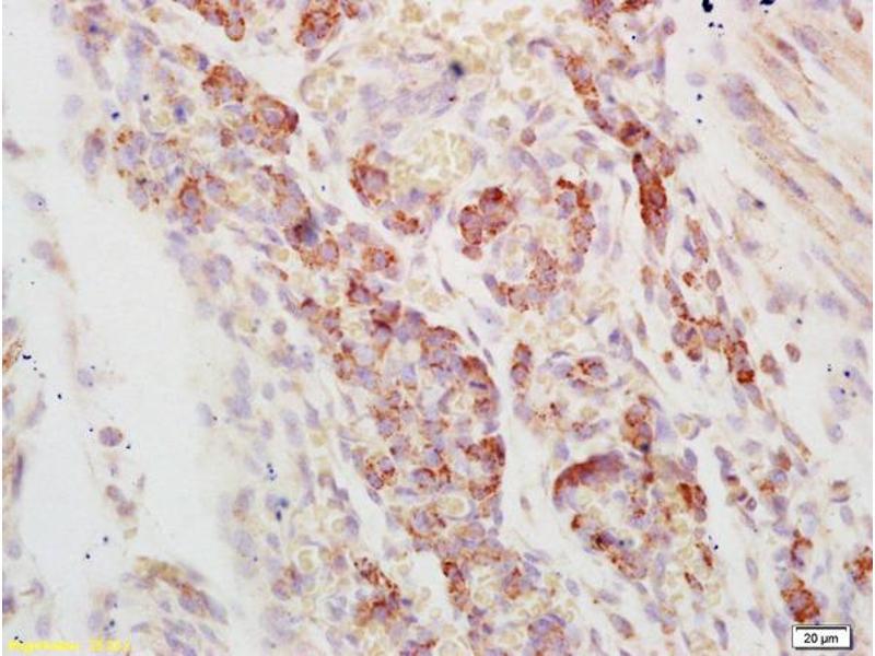 Immunohistochemistry (IHC) image for anti-AXL Receptor tyrosine Kinase (AXL) (AA 180-230) antibody (ABIN756022)